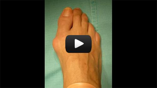 Hallux Valgus (Bunion) Correction
