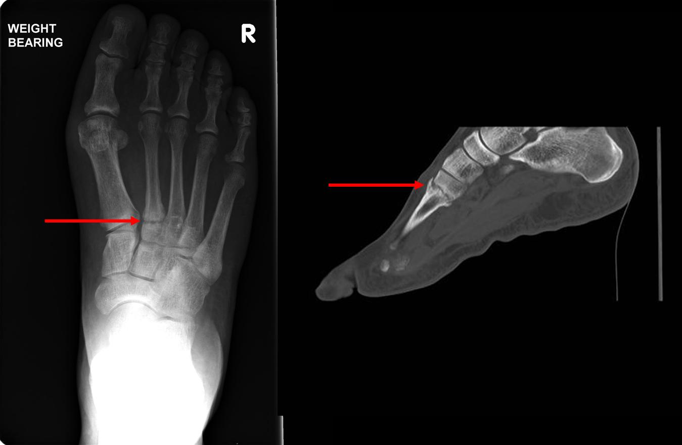 2nd MT Stress Fracture Web